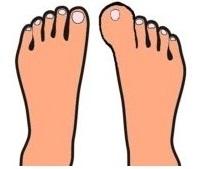 親指が二倍くらい腫れあがった足