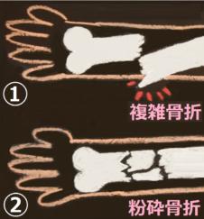 骨折 の種類を描いた図