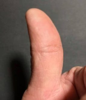 親指の腹にある仏眼相の写真